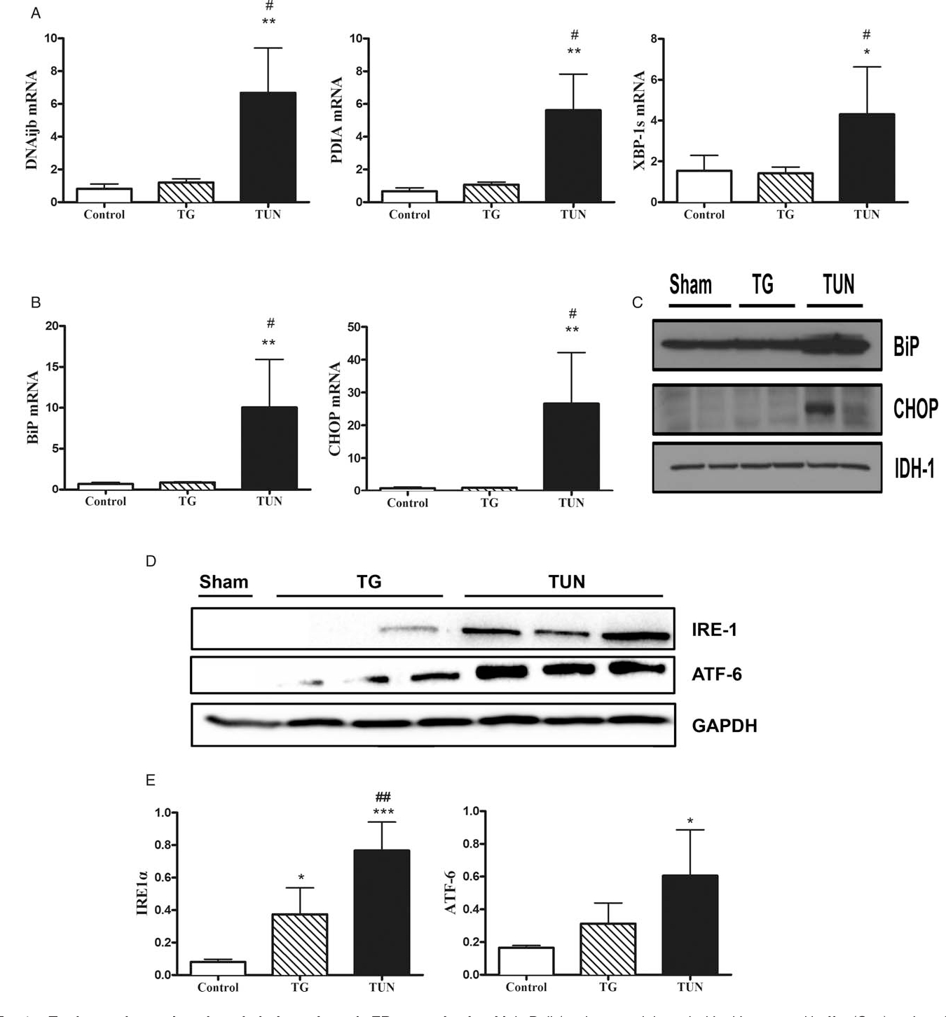 Figure 4 From Modeling Acute Er Stress In Vivo And In Vitro for Er Diagram Either Or